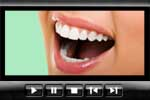 Teeth whitening from the cosmetic dentist