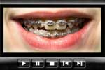Braces patients: dentists and orthodontists