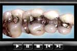 Amalgam dental fillings
