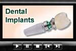 Dentists who place dental implants