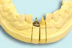 Dental implants often better than root canals