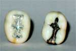 New mercury fillings vs. old silver fillings