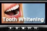 Tooth whitening and cosmetic dentistry