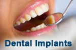 Dental implants as a dentist specialty