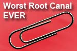 Root canals with paper clips