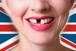 Cosmetic Dentistry & Dental Implants Needed in the UK
