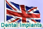 Dental Implants in the UK