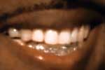 Kanye West shows off diamond teeth