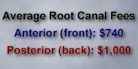 Cost of root canal therapy