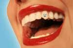 hot dental trends: tooth jewelry