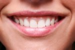 cosmetic dentistry - gummy smiles