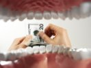 Dental Care:  The High Cost of Avoiding the Dentist