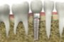 Dental Implant Success Depends on Oral Surgeon and Patient