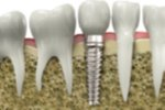 Dentists Report on the Value of a New Dental Implant Patient