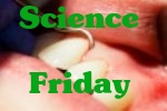 Science Friday: Dental Plaque Bacteria May Trigger Endocarditis