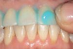 Oral Health Research Claims High-fluoride Massage Prevents Tooth Decay by 400%