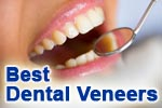 Best dental veneers