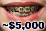average cost of adult braces