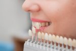 Cosmetic Dentistry Gross Production Survey Results