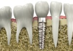 Fees for dental implant and crown